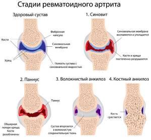 Артрит пальцев рук: диагностика, лечение, профилактика и фото болезни