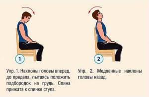 Лечение шейного остеохондроза у женщин, симптомы, признаки