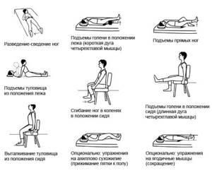 Упражнения при коксартрозе тазобедренного сустава, видео
