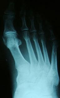 Артроз плюснефалангового сустава: симптомы и лечение заболевания