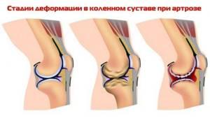 Гонартроз коленного сустава 2 степени: лечение, причины и симптомы заболевания, диета