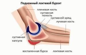 Лечение гнойного бурсита локтевого сустава: лекарства и операция
