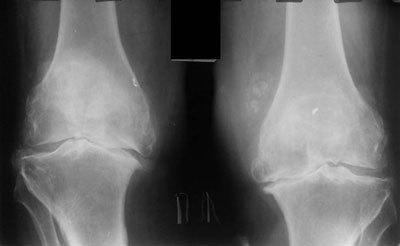 Остеоартроз коленного сустава 1 степени: лечение, симптомы