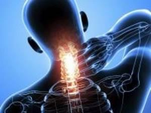 Корешковый синдром шейного отдела позвоночника: симптомы и лечение