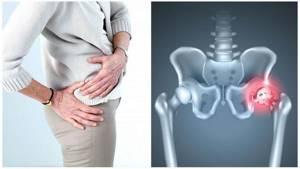 Двухсторонний коксартроз тазобедренного сустава: степени, лечение