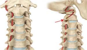 Синдром позвоночной артерии при шейном остеохондрозе: лечение, симптомы, причины