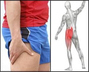 Боль в тазобедренном суставе, отдающая в ногу: лечение, причины