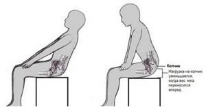 Боли в копчике при сидении и вставании: причины, лечение, профилактика