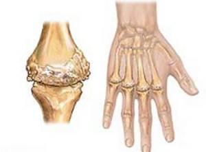 Признаки ревматоидного артрита у женщин: отличия от мужчин