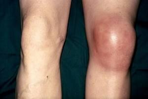 Ушиб колена при падении: лечение, что делать, как лечить ушиб коленного сустава