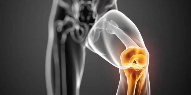 Двусторонний гонартроз коленного сустава, степени и виды лечения