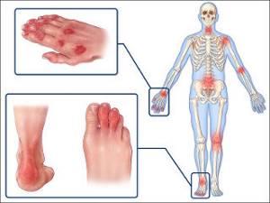 Окопник лекарственный: применение для суставов, мази и настойки из окопника