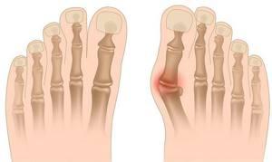 Вальгусная деформация стопы. Причины и лечение