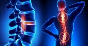 Эффективность народной медицины при лечении остеохондроза