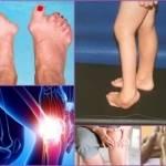 Симптомы и лечение инфекционного полиартрита суставов