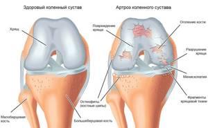 Мази при артрозе: коленного сустава и других, классификация мазей