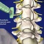 Артроз дугоотростчатых суставов поясничного отдела позвоночника