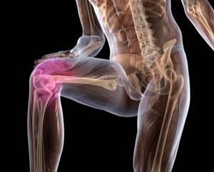 Хондропатия коленного сустава: симптомы, лечение, профилактика