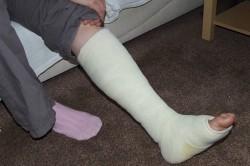 Ложный сустав или псевдоартроз: описание, причины развития, лечение