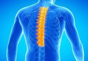 Хондроз: симптомы, диагностика и лечение патологии позвоночника