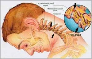 Тошнота при остеохондрозе: причины, лечение, прогноз и последствия