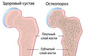 Остеопороз: симптомы и лечение, причины, что такое, как лечить
