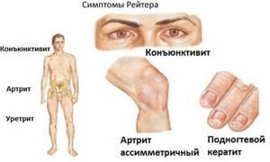 Синдром Рейтера: симптомы и лечение у женщин и мужчин