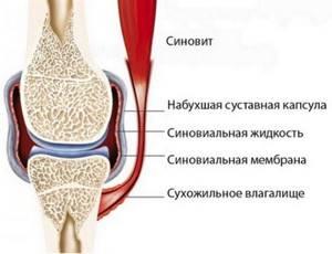 Синовит тазобедренного сустава: причины, обследование и лечение