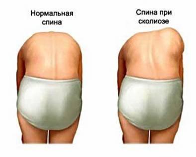 Сколиоз позвоночника у взрослых и детей. Симптомы