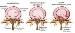 Лечение остеохондроза пояснично-крестцового отдела позвоночника