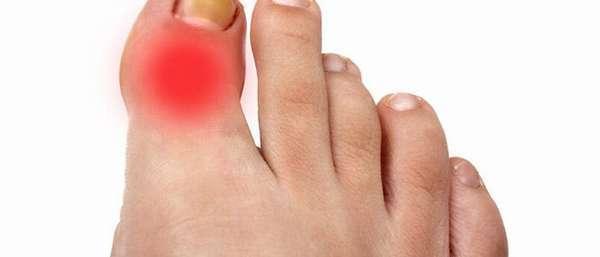 Воспаление сустава большого пальца ноги: причины и лечение