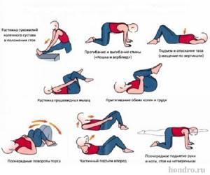 Остеохондроз тазобедренного сустава: причины, симптомы, лечение