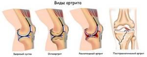 Можно ли вылечить артрит навсегда зависит от его вида