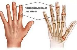 Народные способы лечения артрита тазобедренного сустава: рецепты