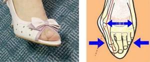 Болит большой палец на ноге в суставе: как лечить и чем, причины боли