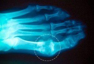 Как лечить подагру на большом пальце ноги: медикаменты, народные средства