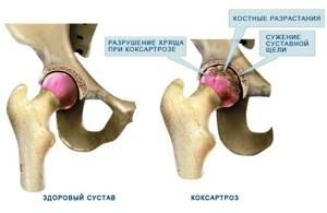 Болезни суставов: симптомы, лечение, как называются заболевания