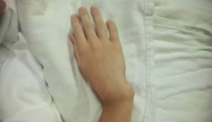Вывих кисти рук: способы диагностики, лечения и последствия