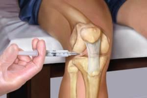 Уколы в коленный сустав при артрозе: препараты, инъекции в колено