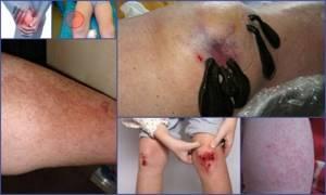 Пиявки при артрозе коленного сустава, артрите, бурсите и кисте Бейкера