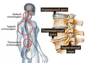 Какой врач лечит остеохондроз позвоночника: к кому обратиться