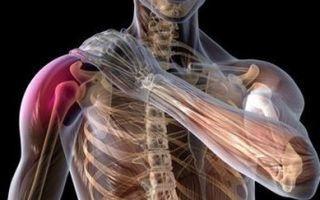 Вывих плеча (плечевого сустава): привычный вывих, подвывих - лечение