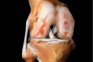 Деформирующий артрит суставов: симптомы и лечение