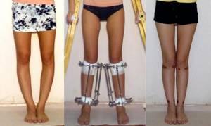 Варусная деформация нижних конечностей. Лечение