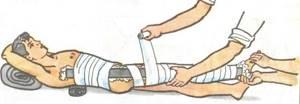 Вывих тазобедренного сустава у взрослых и детей