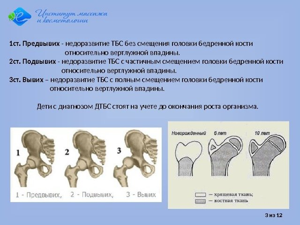 Незрелость тазобедренного сустава у новорожденных: причины и лечение
