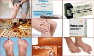 Препараты для лечения артрита: список эффективных лекарств