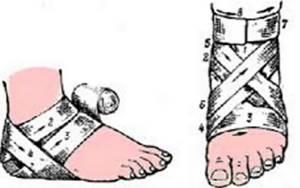 Лангетка на ногу: виды приспособлений, показания, противопоказания