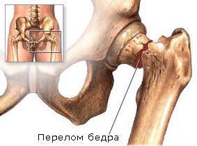 Остеопороз костей: как проверить, сопутствующие боли и лечение