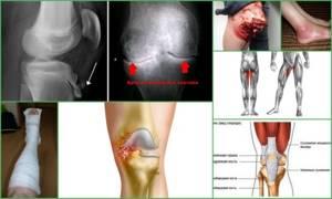 Контрактура коленного сустава: причины, симптомы и лечение